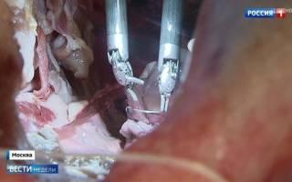 Американскими учеными изобретен робот-хирург