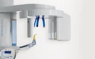 Создан медицинский аппарат для процедуры цветного 3d-рентгена